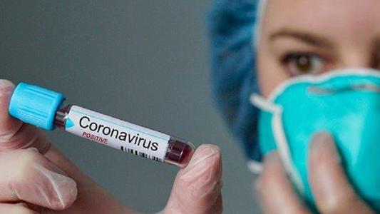 MONZA – CORONAVIRUS : 4 CONTAGIATI IN CITTA'